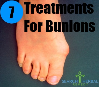 7 Treatments For Bunions