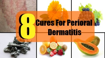 8 Cures For Perioral Dermatitis