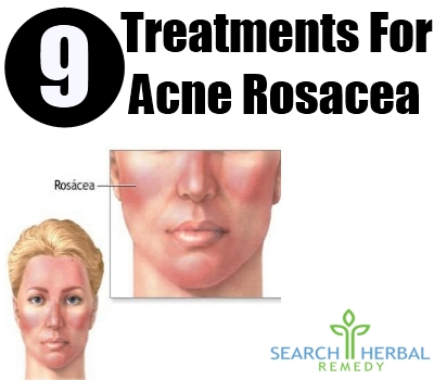 How To Treat Papules Acne Naturally
