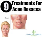 9 Treatments For Acne Rosacea