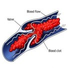 Natural Treatments For Blood Clots