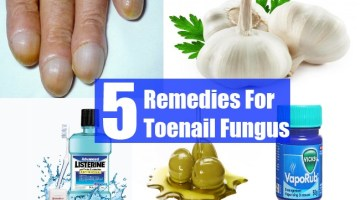 5 Remedies For Toenail Fungus