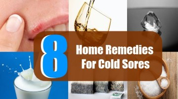 8 Home Remedies For Cold Sores