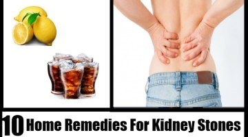 Kidney Stones Home Remedies