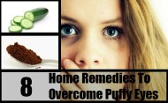 8 Best Home Remedies To Overcome Puffy Eyes