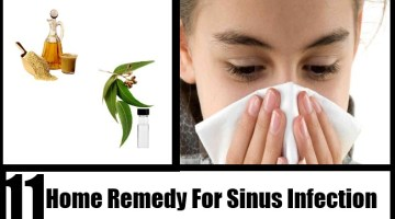 Sinus Infection