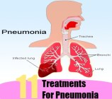 11 Treatments for Pneumonia