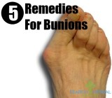 5 Remedies For Bunions