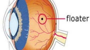 Top 14 Natural Cures For Eye Floaters