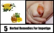 5 Herbal Remedies For Impetigo