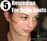 5 Remedies for Acne Spots