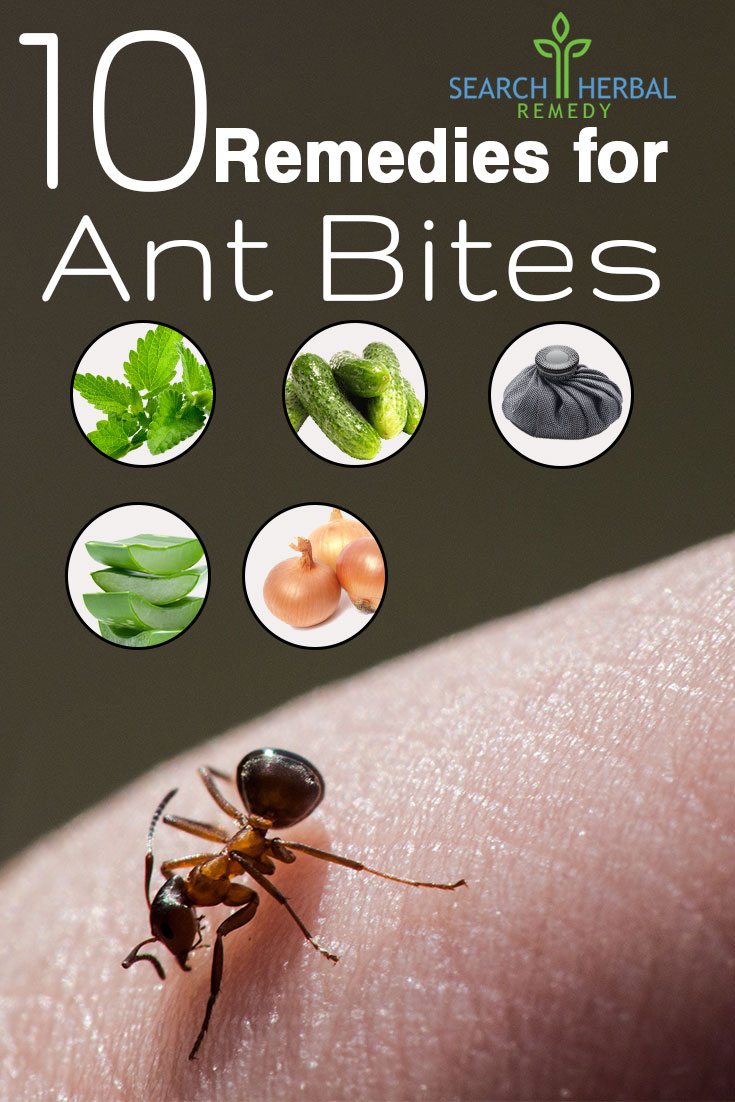 10-remedies-for-ant-bites