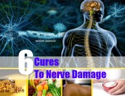6 Cures To Nerve Damage