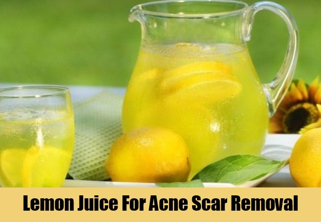 Lemon Juice For Acne Scar Removal