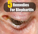 5 Remedies For Blepharitis