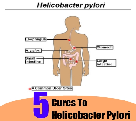 Helicobacter Pylori Bacteria Natural Treatment