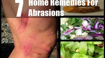 Abrasions
