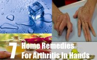 Top 7 Home Remedies For Arthritis In Hands