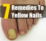 7 Remedies For Yellow Nails