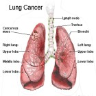 10 Best Natural Treatments For Lung Cancer