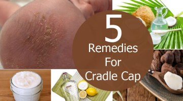 Remedies For Cradle Cap