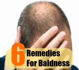 6 Remedies For Baldness