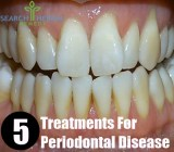 5 Treatments For Periodontal Disease