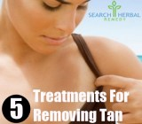 5 Treatments For Removing Tan
