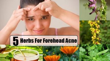 Herbs For Forehead Acne