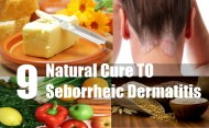 9 Excellent Natural Cures For Seborrheic Dermatitis