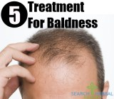 5 Treatment For Baldness