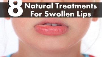 Natural Treatments For Swollen Lips