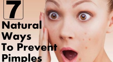 Natural Ways To Prevent Pimples