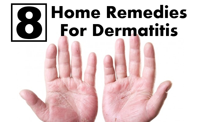 8 Home Remedies For Dermatitis Search Herbal Amp Home Remedy