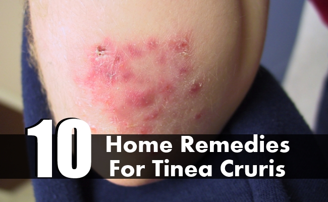 Home Remedies For Tinea Cruris
