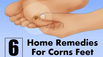 Home Remedies To Remove Corn And Calluses