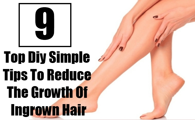 9 Top Diy Simple Tips To Reduce The Growth Of Ingrown Hair