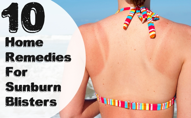 Home Remedies For Sunburn Blisters