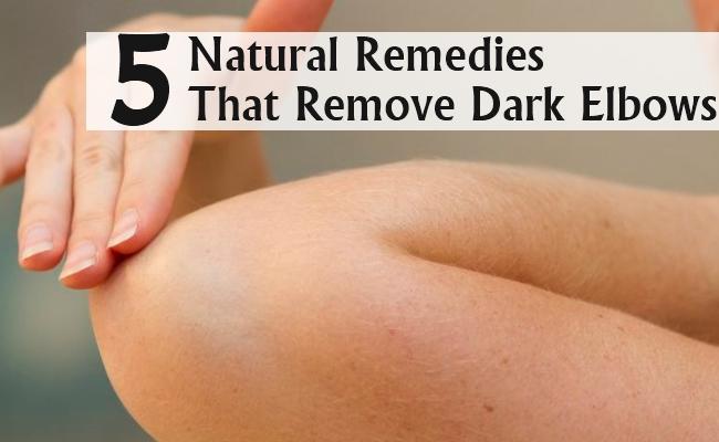 Natural Remedies That Remove Dark Elbows