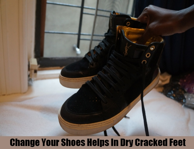 Change Your Shoes Helps In Dry Cracked Feet