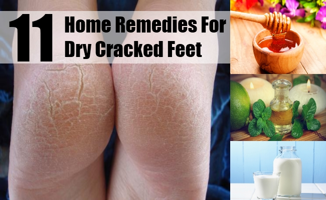 Dry Cracked Feet
