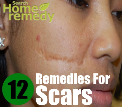 12 Home Remedies For Scars
