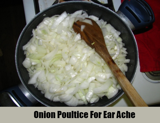 Onion Poultice For Ear Ache