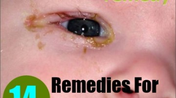14 Home Remedies For Conjunctivitis