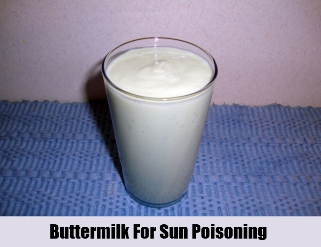 Buttermilk For Sun Poisoning