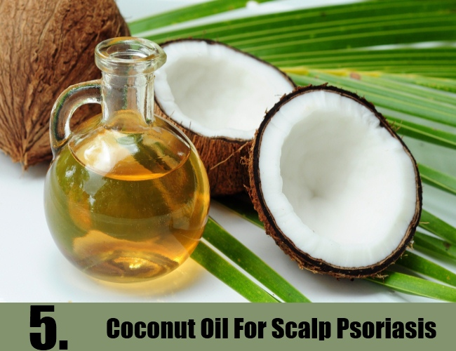 Coconut Oil For Scalp Psoriasis