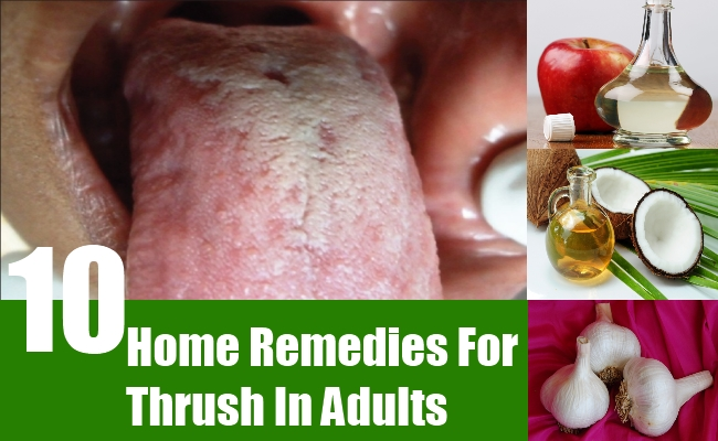 Home Remedies For Thrush In Adults