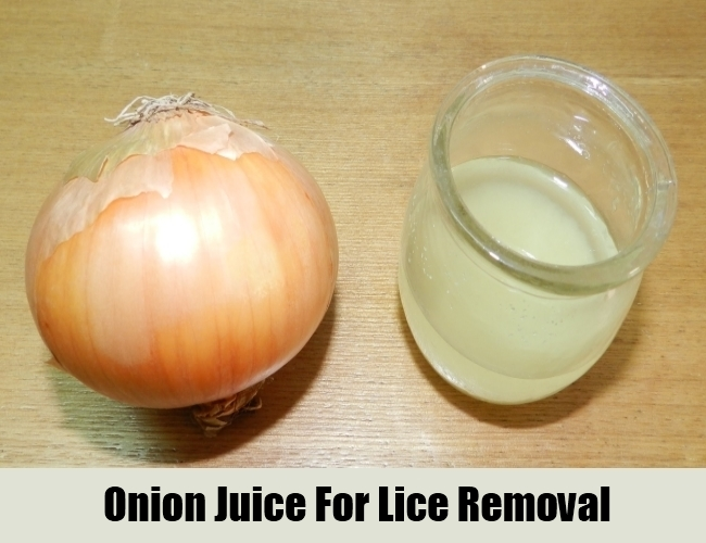 Onion Juice For Lice Removal