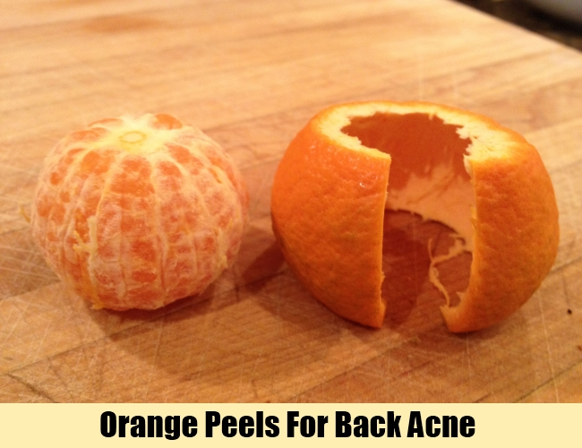 Orange Peels For Back Acne