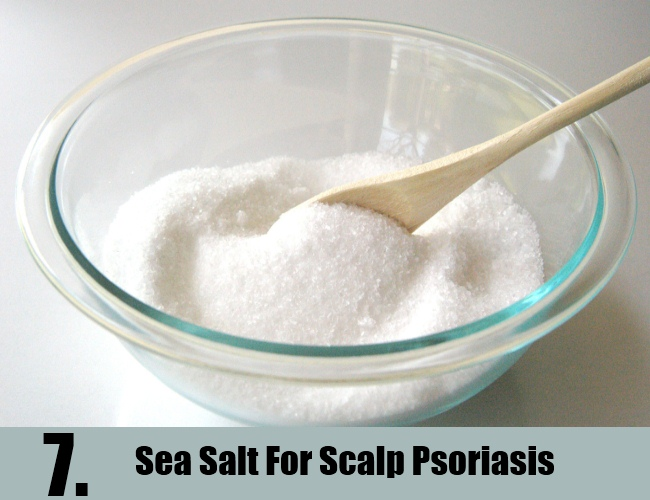 Sea Salt For Scalp Psoriasis